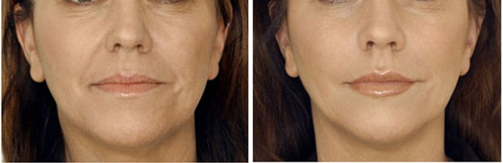 Before After Image of Botox Treatment