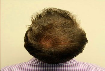 After-FUE Hair Transplant
