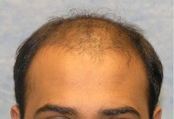 Before-Hair Transplant